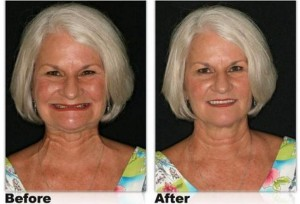 denture-before-and-after