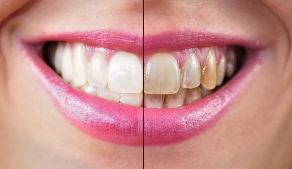 Should You Clean Your Teeth After Drinking Tea